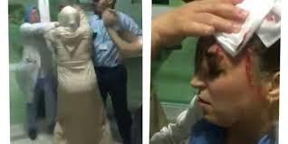 غريب: شجار عنيف بين ممرضتين في مصحة خاصة بالناظور ينتهي في مخافر الشرطة